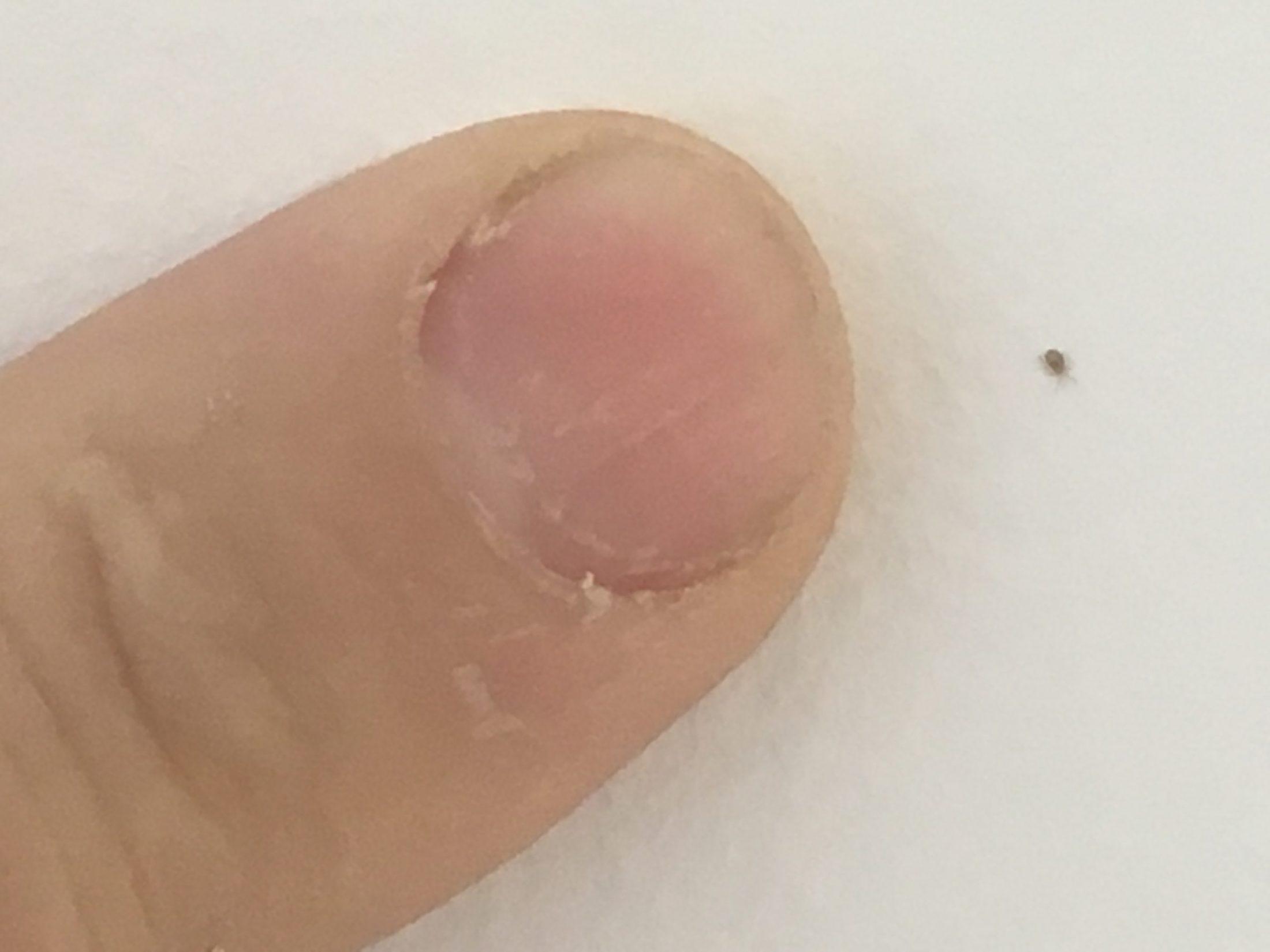 Bird Mite actual size in comparison to a small finger nail.